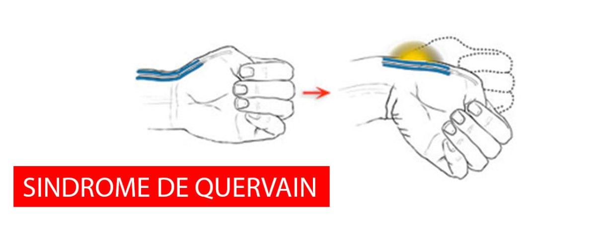 Dopo gli occhi, è il momento del polso: il morbo di De Quervain